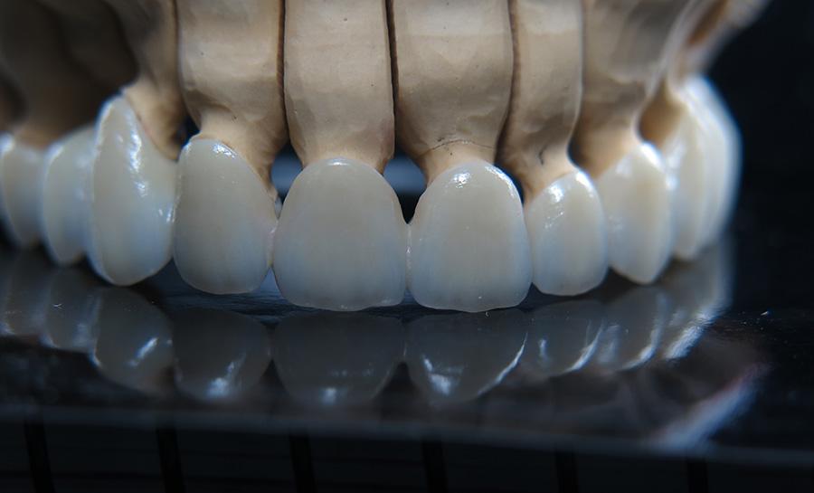 lucrare dentara brasov