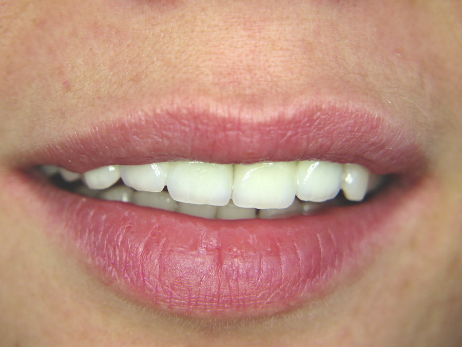 lucrari dentare brasov