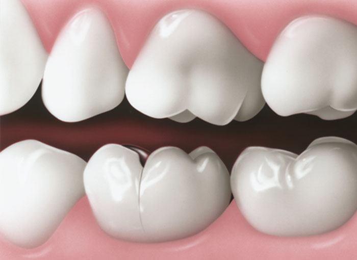 sindromul dintelui fisurat