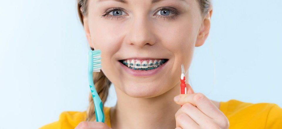 Curatarea dintilor dupa purtarea aparatelor dentare