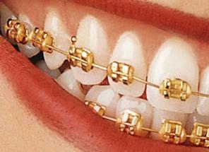 bracketi aur