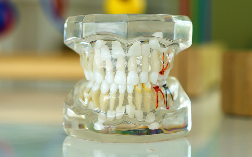 pierderea precoce a dintilor temporari