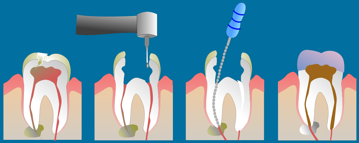 tratament canal dentar brasov