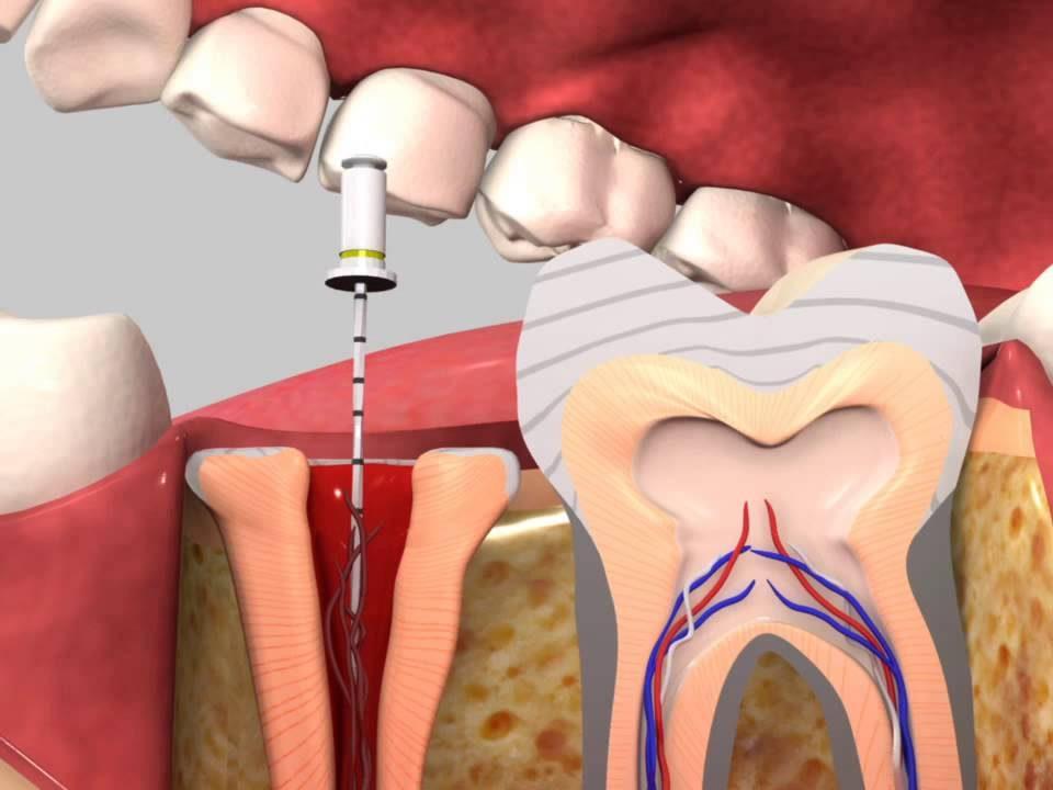 tratamentul canalului dentar copii