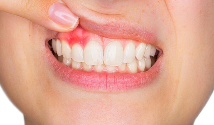 Afectiuni parodontale